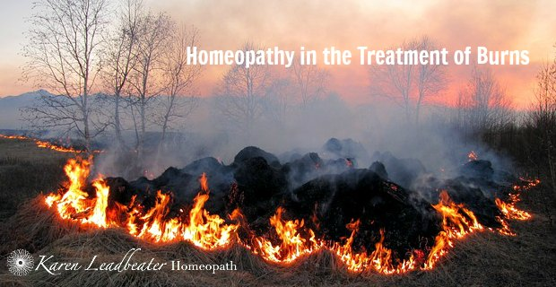 Homeopathy in the Treatment of Burns